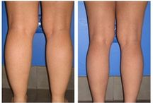 Liposuction - Calves / Dr. William Hall specializes in calf and calves liposuction treatments. He uses a variety of techniques for surgery such as laser lipo and smart lipo. Call today to schedule your complimentary consultation to learn more about liposuction cost, liposuction pros and cons, and liposuction side effects at 480-946-7100. View the Infini Phoenix Liposuction website at Infiniskin.com to see additional liposuction before and after photos, videos, and reviews.