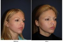 Cheek Implant