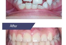 Invisalign Before & After / These are cases that Dr. Maria Yazji treated with Invsialign. Dr. Yazji is a top 1% provider in North America. It's the highest level of recognition awarded by Invisalign.
