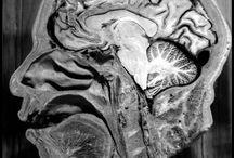 Anatomy/Physiology/Medical Oddities