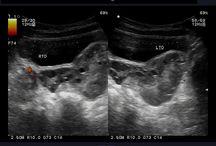 ovary ultrasound