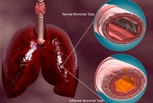 SISTEMA RESPIRATORIO / RESPIRATOIRE / Beneficios del G5 en los problemas respiratorios / Bienfaits du silicium en cas de problèmes respiratoires. www.siliciumg5.com