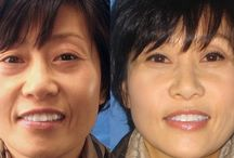 Lose Nasal Folds And Smile Grooves By Employing Face Gymnastics Routines
