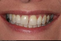 Upper right central incisor extracted for external resorption replaced with dental implant