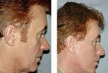 Younger Looking Men: Guys Utilizing Face Training Workouts