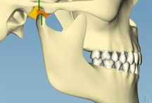 Why the 2nd molar you prepped is in contact with the opposing tooth.