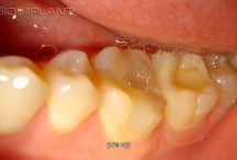 ***10 YEARS FOLLOW UP OF A TRULY ANATOMIC MULTI ROOTED CERAMIC LOWER MOLAR IMPLANT*** / Screw industry and their recruited experts (dental associations) are still completely unaware and remain unethical ignorant to worlds most innovative, simple and logical non-surgical CAD/CAM immediate dental implant solution.