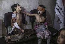 """"""" سـ أخبر الله بكُل شيء """" هي آخر جملة قالها طفل سوري عمره ثلاثُ سنوات قبل أن تفارقه الحياة """"...."""