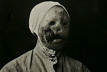 Historical medical photographs