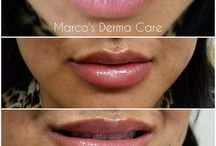 Lips Augmentation / Reasons behind patients seeking lip augmentations may vary but the causes may be the same. It can be an effect of aging or genetics. Some have concerns of thinner lips not to their liking or some complain that their smiles are not pleasing enough (issues of gums sticking out while smiling is common).  As people age, their lips also lose their fullness and youthful look.