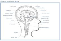 pineal gland tumor