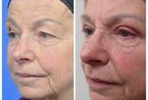 Facial Procedures / Facial surgery and procedures