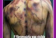 Fibromialgia . / Something to know.