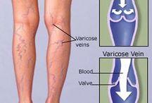Varicose Vein Anatomy