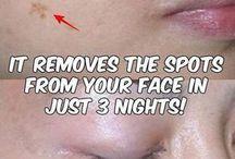 Facial Spots