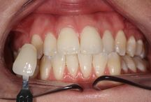 Patient before & after pictures - Tooth whitening / Before & after pictures of patients who have undergone tooth whitening at Elliott McCarthy Dental Care