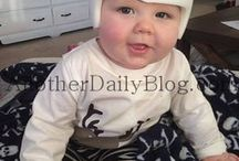 Plagiocephaly / My son's journey with Doc Band and Plagiocephaly