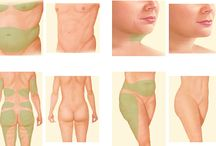 Liposuccion Tunisie / La liposuccion est parmi les principales interventions de chirurgie esthétique qui permet d'enlever la graisse dans les zones du corps où la graisse est généralement accumulée.
