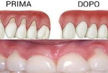 I denti sono importanti!