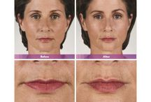 JUVÉDERM® VOLBELLA® / Injectable filler based on hyaluronic acid (HA) that provides a desirable improvement in the lip contour, boosting volume, smoothing vertical creases (smoker's lines), and achieving symmetry – all in a single comfortable treatment.