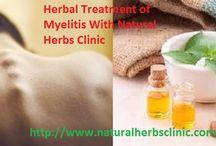 Myelitis Natural Herbal Treatment