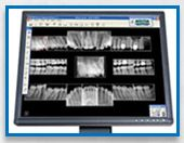 Dental Technology Wilmington NC / Dr. Gregory Garrett, Wilmington NC dentist, takes pride in providing his patients with the latest in dental technology for all dental treatment. Digital imaging, intra-oral camera exams and the highest in sterilization standards. Call our Wilmington dental office today. http://wilmingtonsmiles.net/dental_technology_wilmington_nc.html