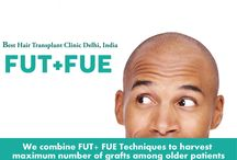 Best Hair Transplant Delhi India / We are, provides all kind of hair treatment for both men and women such as best hair transplant in Delhi, body hair transplant to head, eyebrow, eyelashes,  PRP hair treatment, beard, moustache, FUE, FUT, hair loss treatment at affordable cost.