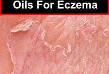 eczema help