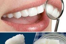 aclaración de dientes