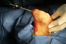Em Cirurgia