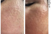 Progress Photos / Here is my 1st update of my progress pictures dealing with my indented acne scarring over the last 2 months.     #bbloggerau #skincareblog #beautycommunity #skincareaddict #bblogger #bbloggers  #skincare #skincareobsessed #beauty #beautyproducts #acnecare #indented #scarring #acne #acnescars #updates #skinhealth #skin #progresspictures