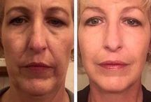 Face Toning Gymnastics Simply Take A Few Minutes Each Day To Appear Years Younger / Facial Aerobics: Chinese Facelift Rubbing Solution