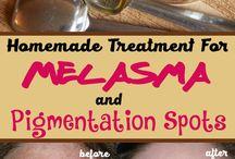 melasma pigmentation