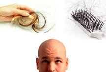 Caída del Cabello / Remedios caseros, Tratamientos naturales para la caída o perdida del cabello o el pelo.