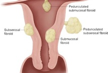 Fibroma in Uterus / What should to do?