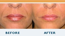 Plastic Surgery Center / by Summit Medical Group