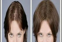 saç dökülme tedavi