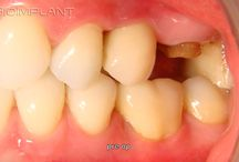 ***IMMEDIATE UPPER LEFT MOLAR IMPLANT***