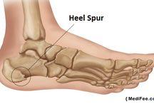 sore feet!