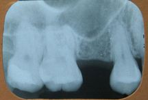 Dental Implant Sinus Lift / Dental Implant Sinus Lift when there is insufficient bone for for implant placement.