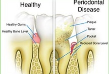 What are the stages in periodontal disease?