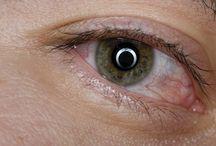 Enfermedades en los ojos