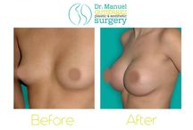Breast Before and After / Dr. Manuel Gutierrez plastic surgery before and after breast procedures