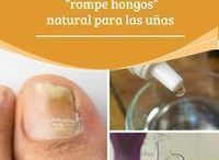 hongo uñas