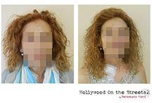 Αποκατάσταση μαλλιών μετά τις χημειοθεραπείες | Τεχνική HOS-2 / www.kord.gr & www.hos2.gr Αποκατάσταση μαλλιών μετά τις χημειοθεραπείες με τη καινούρια τεχνική HOS-2. Φωτογραφίες πριν και μετά.
