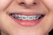 Braces / Dr. Afshin Arian specializes in orthodontic braces to help straighten your teeth & beautify your smile at affordable rates.
