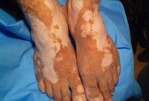 Vitiligo Treatment London