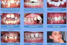Reasons you should see an orthodontist