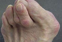 voeten en reuma