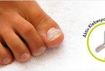 ingrow nails